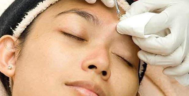 cosmetic surgery procedure